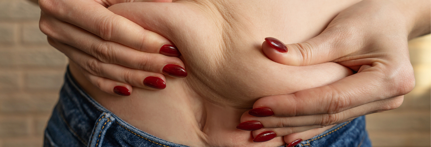 A importância da lipólise no tratamento de celulites e gordura localizada